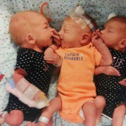 Беременность тройней