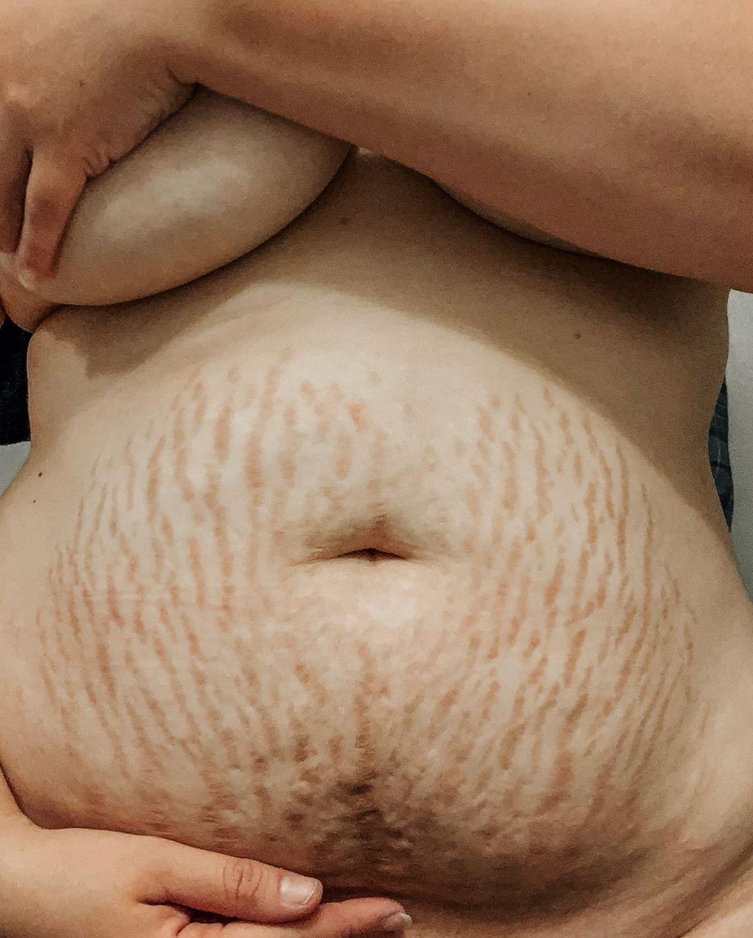 Тело после родов